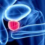 Prostatitis crónica no bacteriana: causas, síntomas y curas