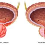 Próstata inflamada: síntomas y causas