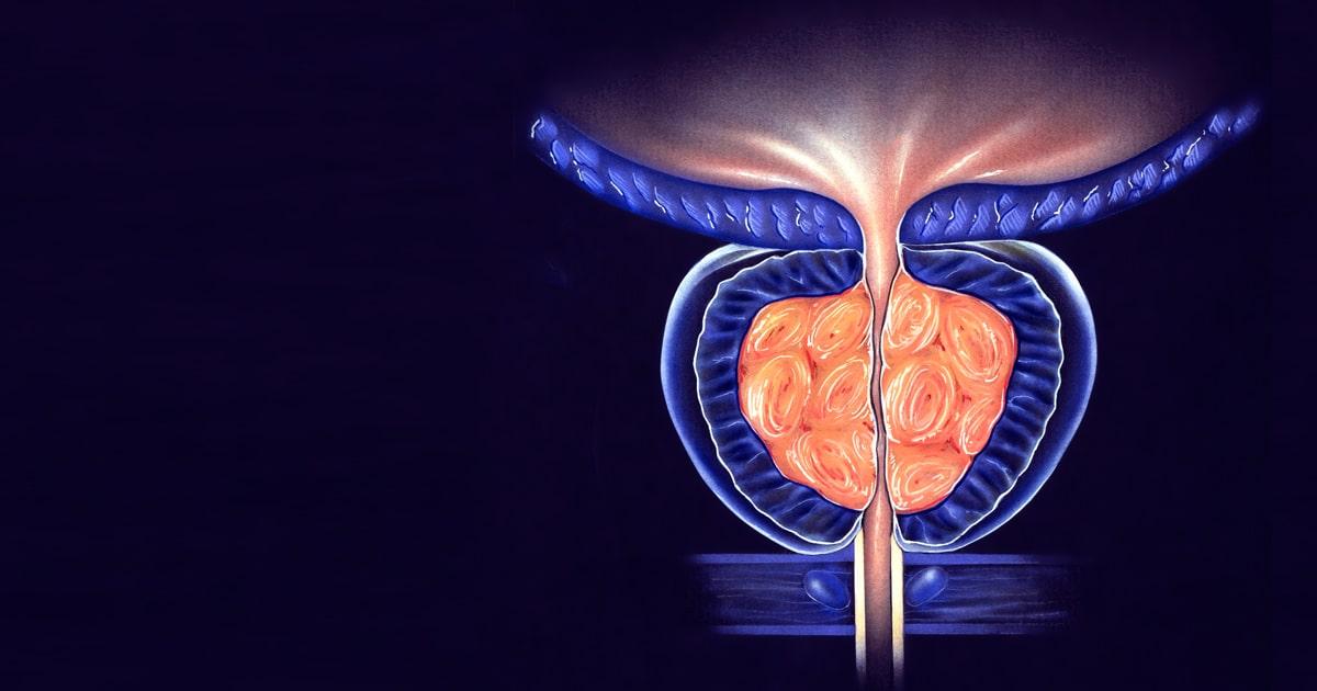 síntomas de la prostatitis crónica