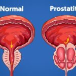 Prostatitis bacteriana aguda: causas, síntomas y curas