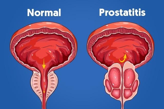 Prostatitis bacteriana aguda